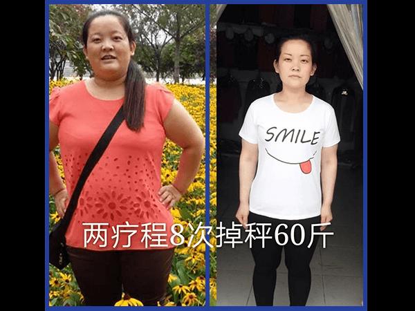 山东 减重减重将近60斤