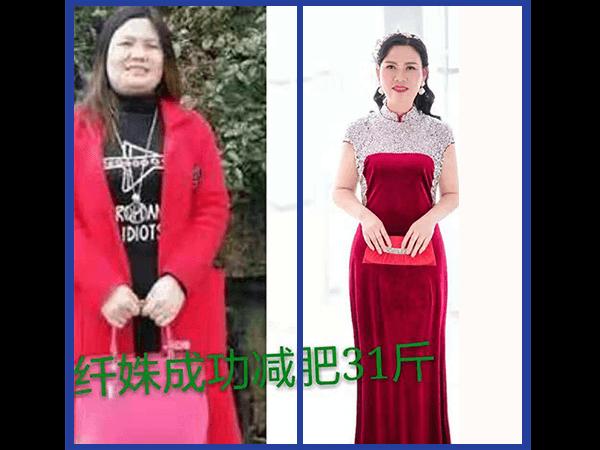 重庆 肖秀燕 减重31斤